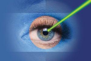 Correcting Astigmatism During Cataract Surgery