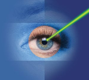 laser-assisted cataract surgery